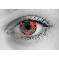 Zombie Hemorrhage contact lens